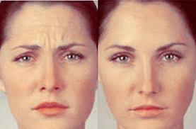Botox-voor-en-na