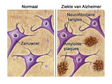 alzheimerpath